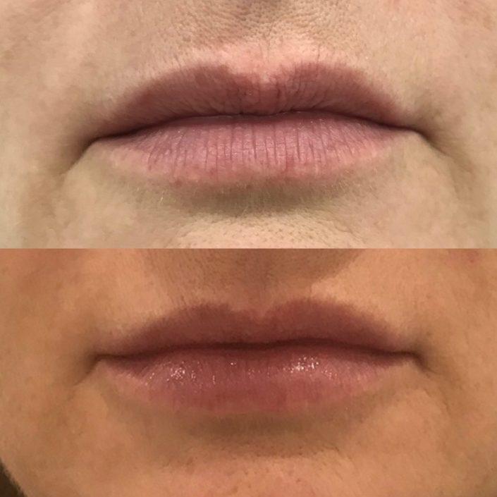 Pred a po_Pery, MUDr. Diana Višňovská