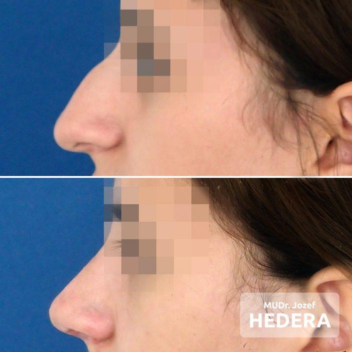 Rhinoplastika, operácia nosa, MUDr. Jozef Hedera, Concept Clinic
