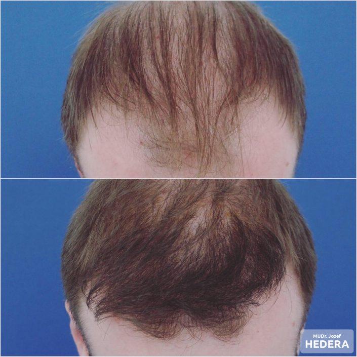 Transplantacia vlasov, MUDr. Jozef Hedera