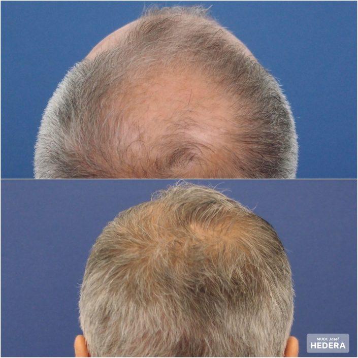 vlasova transplantacia MUDR. JOZEF HEDERA