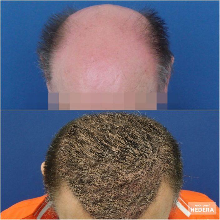 Transplantacia vlasov Mudr. Jozef Hedera