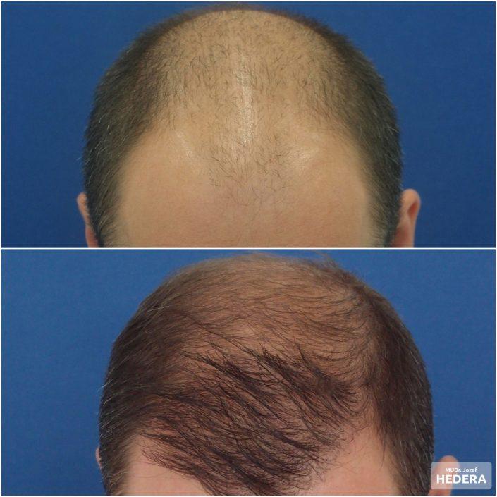 Vlasová transplantacia MUDr. JOzef Hedera, concept clinic