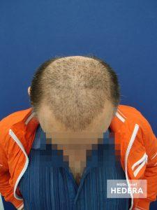 vypadavanie vlasov dr.hedera