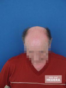 Transplantacia vlasov Concept Clinic MUDr. Jozef Hedera